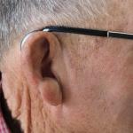Cause della sordità